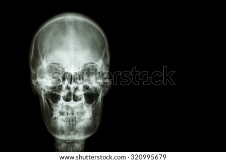 film x-ray skull of human and blank area at right side ( Medical , Science and Healthcare concept and background ) - stock photo