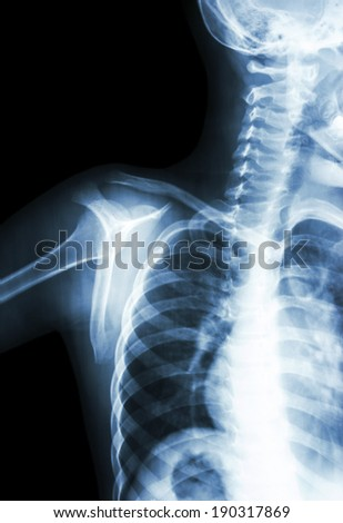film x-ray transcapula Y view : show normal child's shoulder