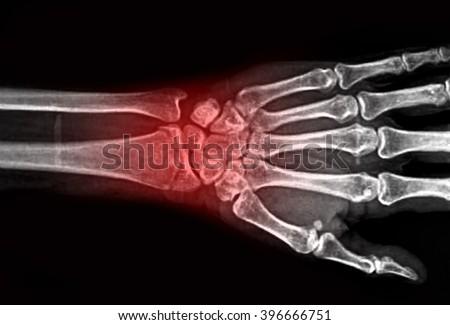 film x-ray wrist show fracture distal radius - stock photo