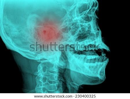 fine image of medical xray skull background - stock photo