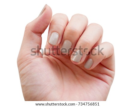Fingernails Painted Gray Color Lack Of Nutrients And Do Not Make Nail Shape