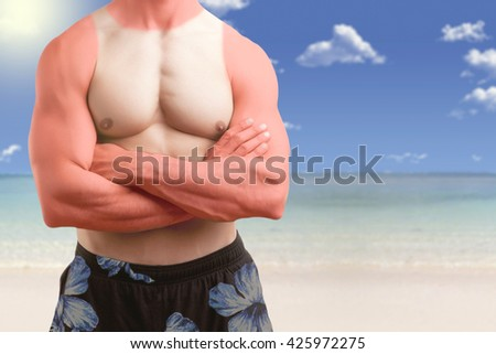 Fit man standing shirtless with his arms crossed in a beach with a sunburn - stock photo