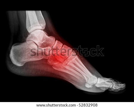 foot and ankle pain on x-ray, isolated on black background - stock photo