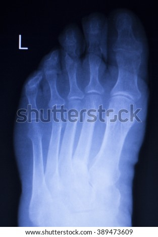 Foot and toes injury Traumatology medical x-ray Orthopedic test scan image.