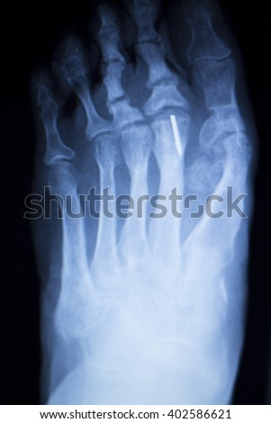 Foot and toes medical x-ray test scan result for adult showing orthopedic Traumatology titanium metal plate implant image.