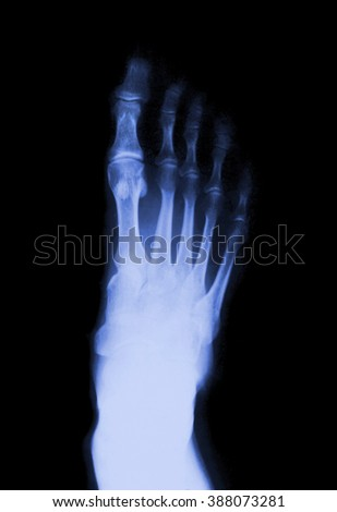 Foot fingers on the x-ray