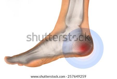 foot pain on x-ray  - stock photo