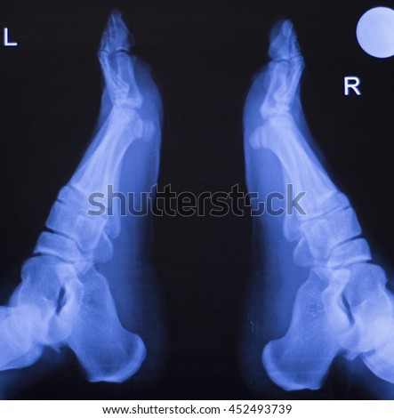 Foot, toes, heel and ankle xray traumatology and orthopedics test medical scan used to diagnose sports injuries. - stock photo