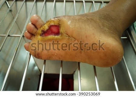 Foot ulcers from diabetes , selective focus. - stock photo