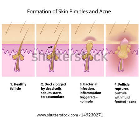Formation of skin acnes and pimples - stock photo