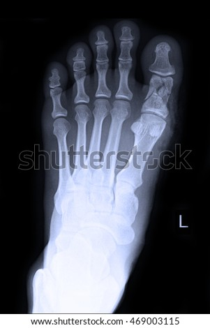fracture at big toe left