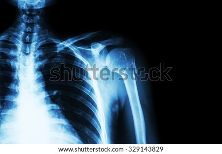 Fracture at neck of humerus ( arm bone ) ( film x-ray left shoulder and blank area at right side ) - stock photo