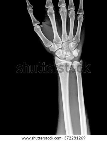 Fracture distal radius (wrist bone) - stock photo