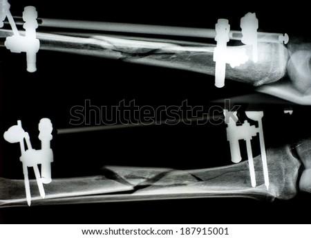 Fracture femur - stock photo