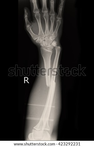 fracture shaft of radius & ulnar bone : right hand - stock photo