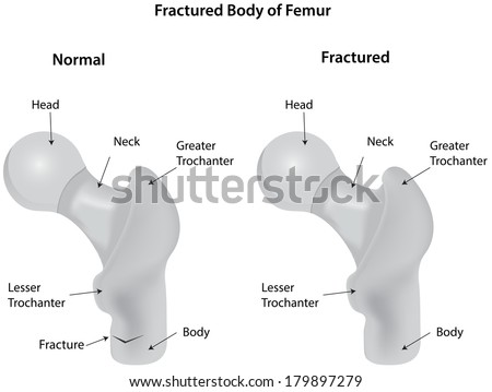Fractured Body of Femur Diagram Labeled - stock photo