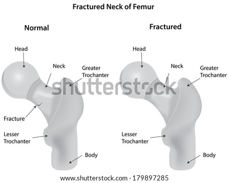 Fractured Neck of Femur Diagram Labeled - stock photo