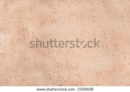 Freckled human skin. Texture or background. - stock photo