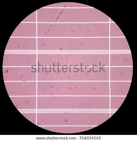Fresh red blood cells in Cerebrospinal fluid (CSF) on scale counting chamber - stock photo