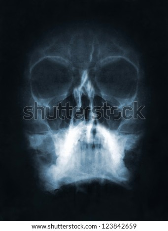 Front face skull in x-ray image - stock photo
