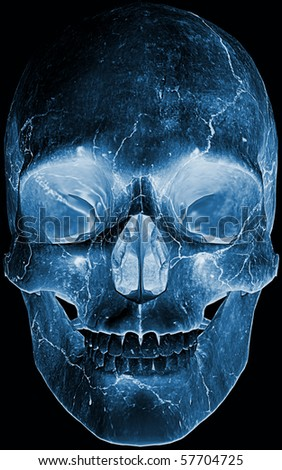 front face skull x-ray - stock photo