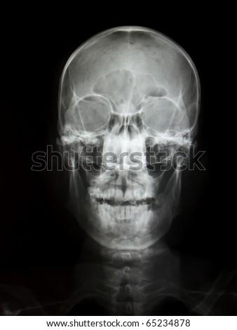 Front face skull x-ray image - stock photo