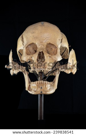 front of separate skull - stock photo