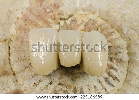 frontal bridge with fossil - stock photo