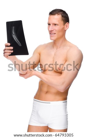 Full isolated studio picture from a young naked man with bone fracture