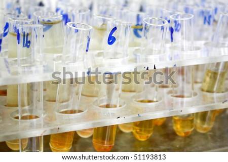 Full used test tubes - stock photo
