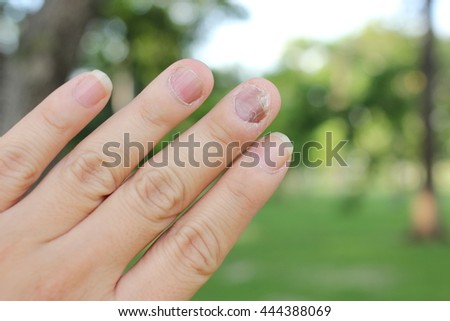 Fungus Infection on Nails Hand, Finger with onychomycosis in green environment. - soft focus - stock photo