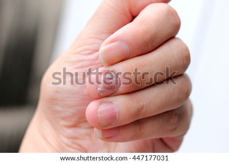 Fungus Infection on Nails Hand, Finger with onychomycosis. - soft focus - stock photo