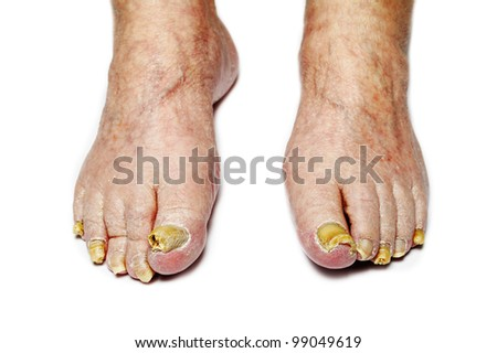 Fungus Infection on Nails of male Feet - stock photo