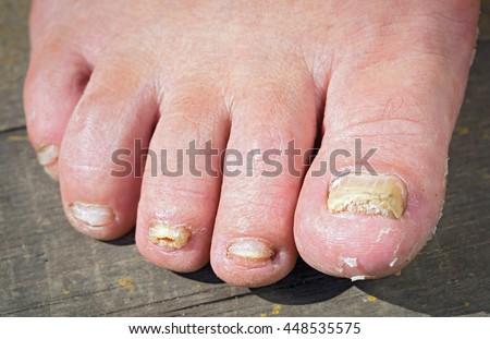 Nhiễm nấm trên Móng tay của chân Man
