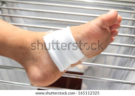 Gauze bandage the foot,treating patients with foot ulcers - stock photo