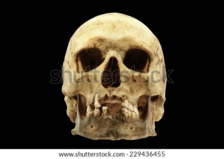 Genuine human skull isolated on black background - stock photo