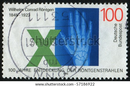 GERMANY- CIRCA 1995: stamp printed by Germany, shows Roentgen hand, circa 1995. - stock photo