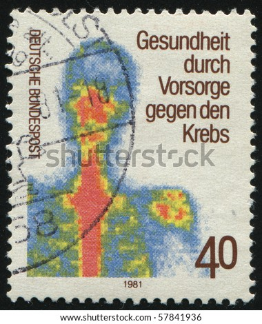 GERMANY- CIRCA 1981: stamp printed in Germany, shows  Early examination for the prevention of  cancer, circa 1981. - stock photo