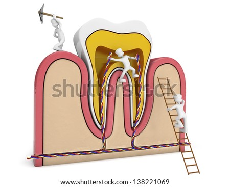 germs destroying a schematic tooth section. 3d image. - stock photo