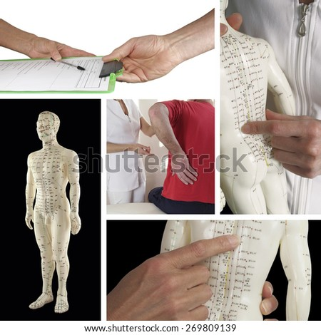 Getting an acupuncture treatment for back ache collage - five pictures including handing over medical form, consulting with acupuncturist, acupuncture model on black background and close ups of model - stock photo