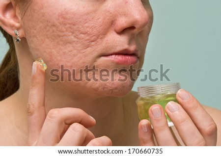 Girl applying aloe gel to problematic skin with acne scars - stock photo