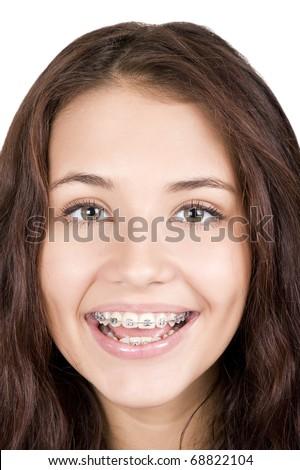 girl with braces - stock photo