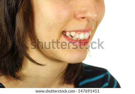 Girl with crooked teeth smiling. Teeth close up. - stock photo
