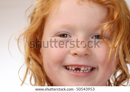 Girl with missing tooth - stock photo