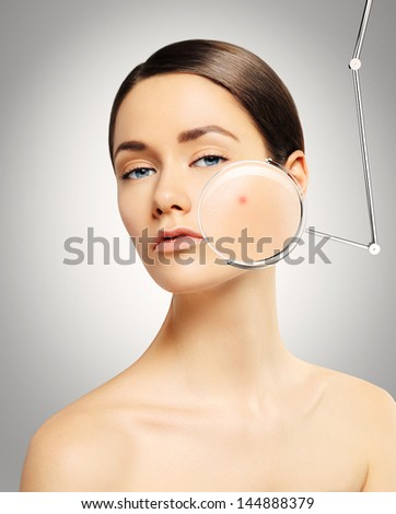 girl with problem skin - stock photo