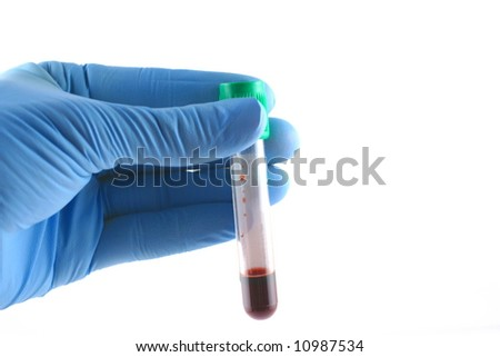 gloved hand with red liquid filled test tube - stock photo