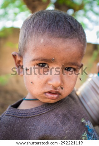 GODWAR REGION, INDIA - 15 FEBRUARY 2015: Young Indian child with flies around face.