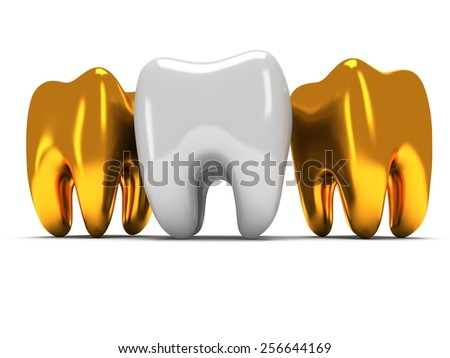Gold and healthy teeth isolated on white background. 3D render. Dental, medicine, health, out of crowd concept. - stock photo
