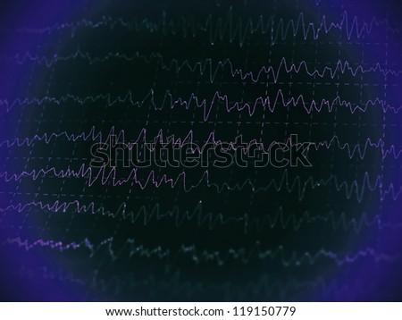 graph brain wave EEG - stock photo