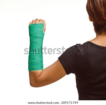 green cast on hand and arm isolated on white background. - stock photo